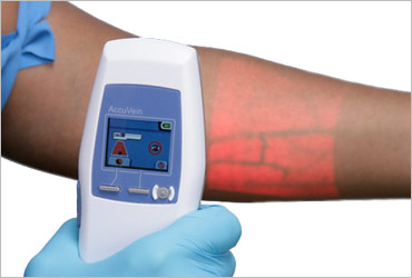 AccuVein Vein Finder